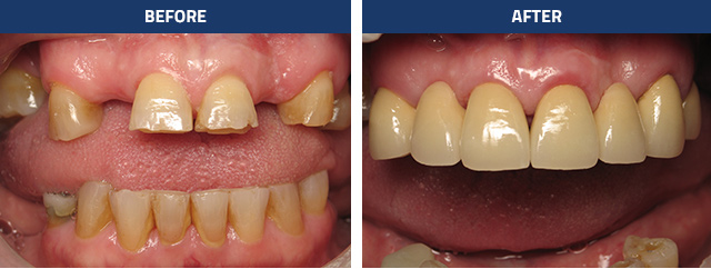 bruxing-damage-severe-incisal-wear