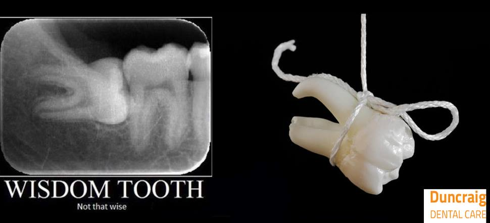 Wisdom teeth - to remove or not to remove - That is the question!