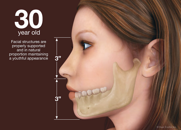 bone-loss-30-year-old