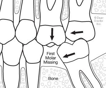 replacing-back-teeth